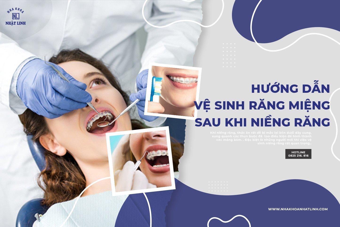 Vệ sinh răng miệng một cách chỉn chu sau khi niềng răng