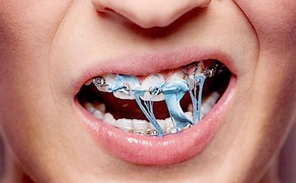 Không ăn thực phẩm dai, cứng. Các loại thực phẩm có khả năng dính báo cao trên răng